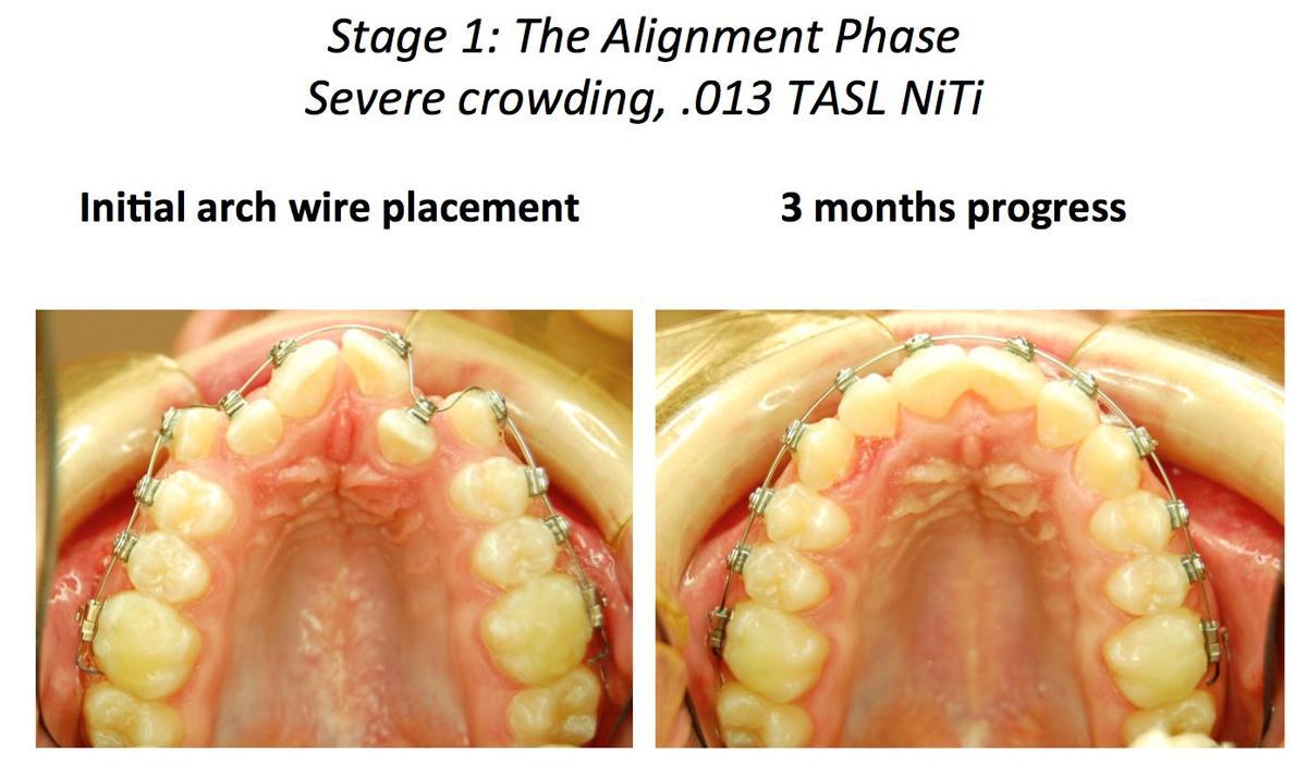 10-2 TenBrook Orthodontics 2.png