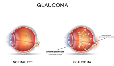 6 Ways to Prevent Glaucoma