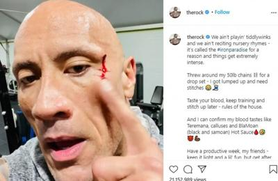 Dwayne Johnson suffers gym injury