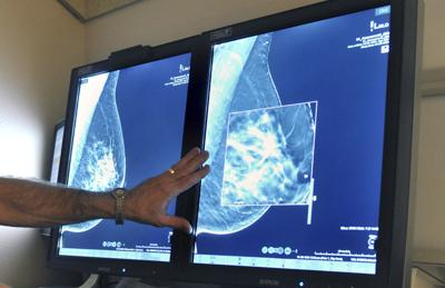 Breast Cancer Mammograms (copy)