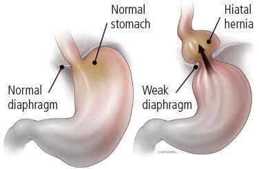 What is a hiatal hernia?