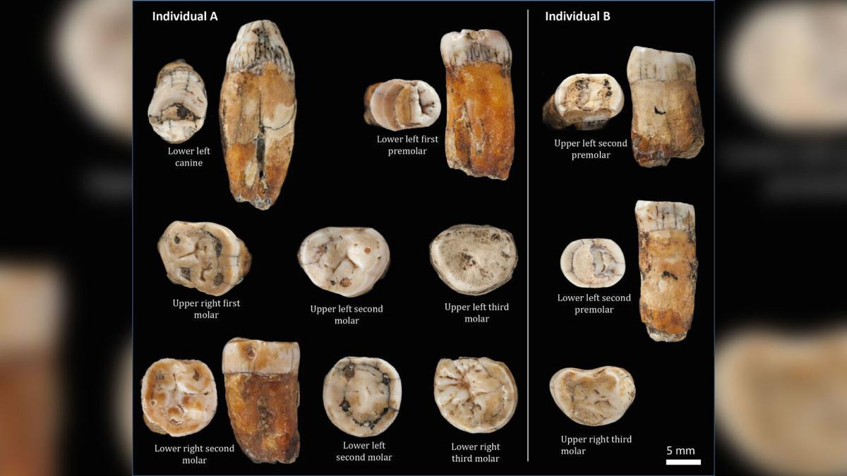 Neanderthal teeth