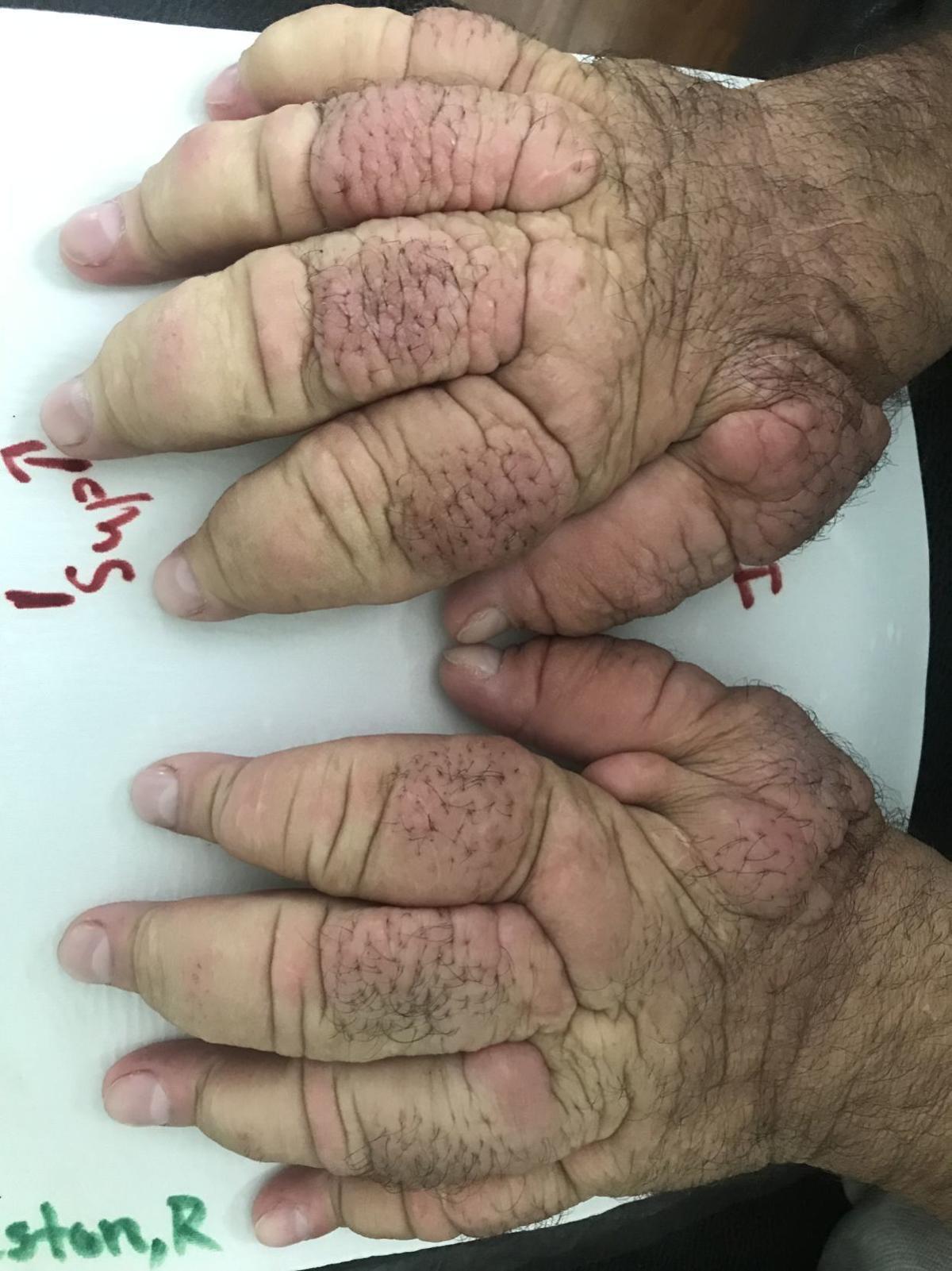 Swolen hands