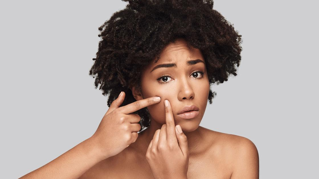 Acne doesn't just go away when you enter adulthood. Here are some tips for dealing with it