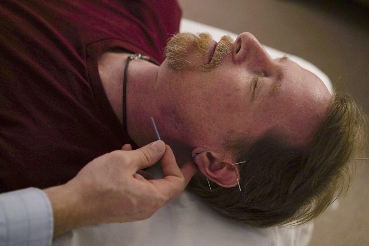 Opioids Acupuncture