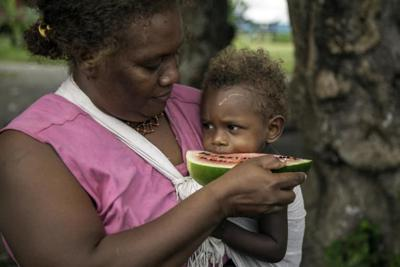 Poor diets damaging children's health in the Pacific, warns UNICEF