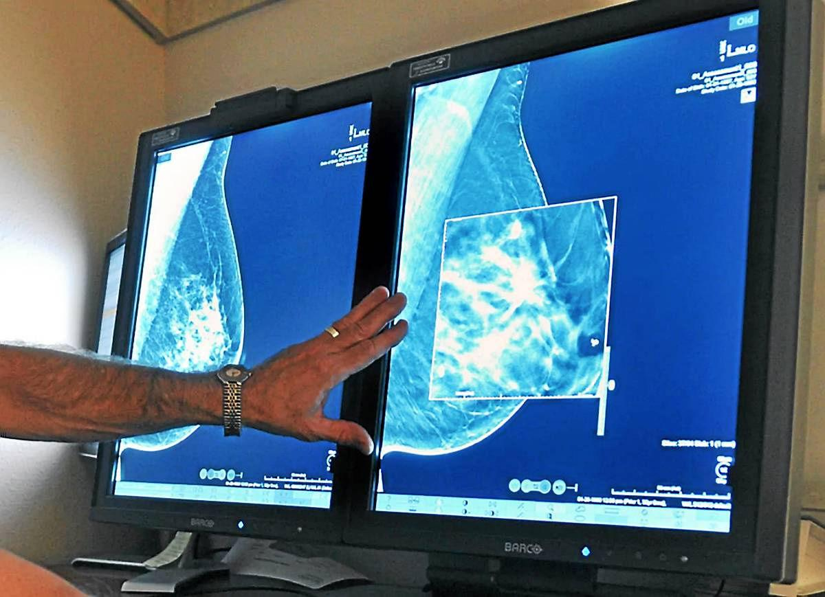 Mammography enters third dimension