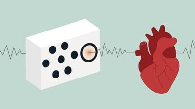 WebSmart speakers that can detect irregular heartbeats