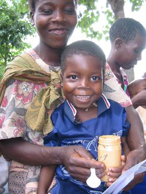 Peanut-Based Food Treats Severe Malnutrition