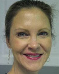 Ivy Filson, Licensed Medical Aesthetician | Staff | emissourian com