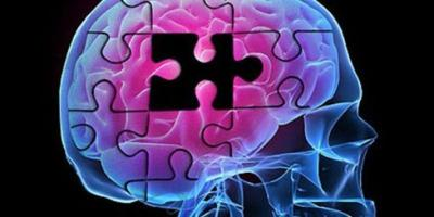 Study: Midlife obesity may spur risk for earlier Alzheimer's
