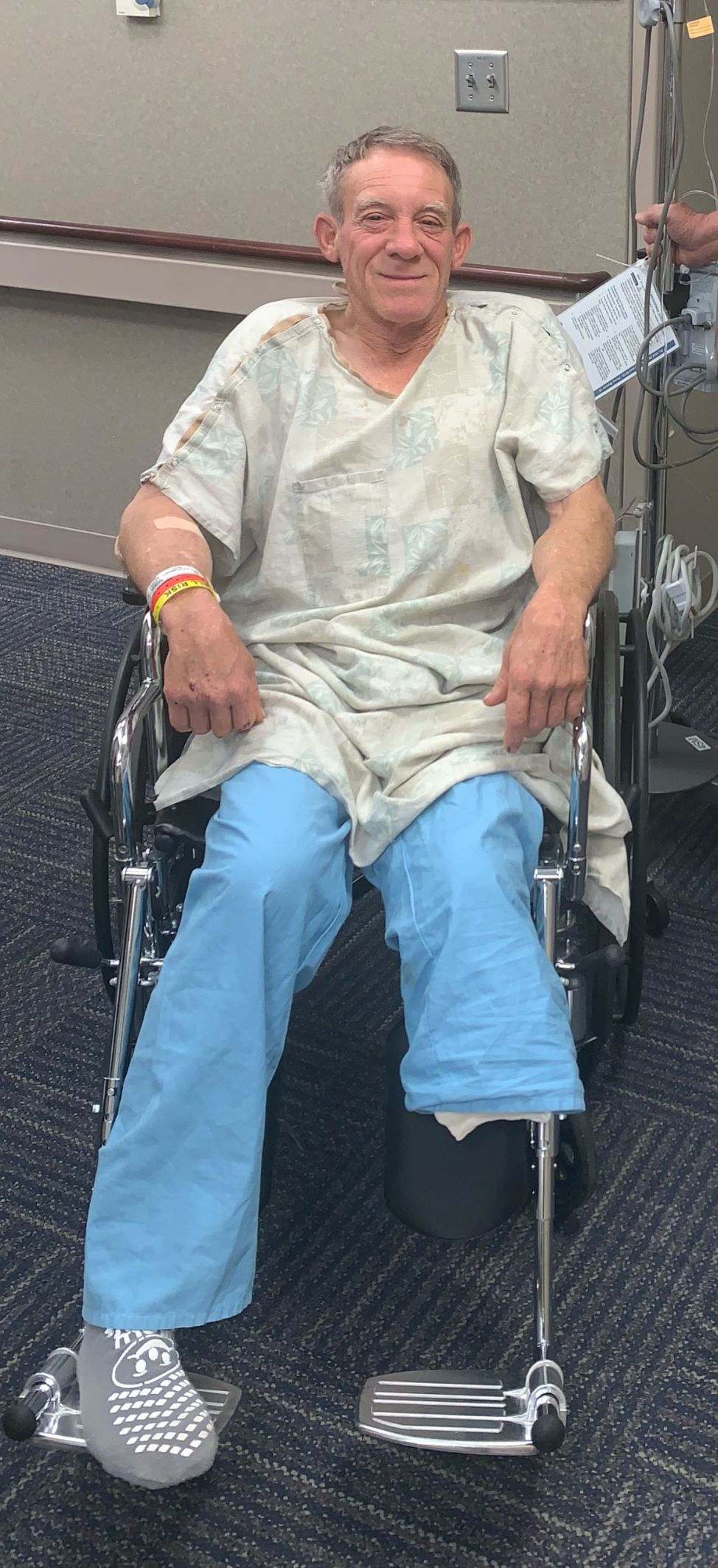 Kurt Kaser cut off part of his leg