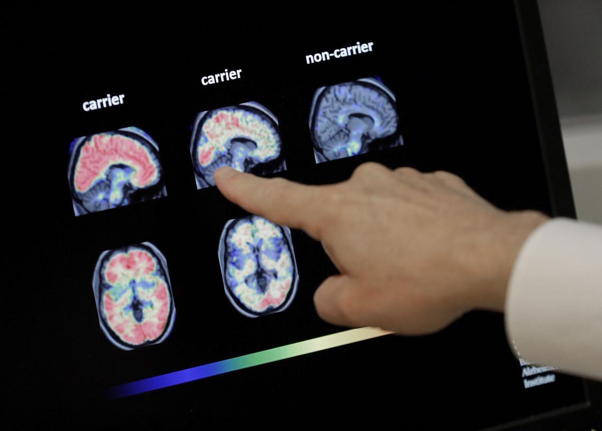 Alzheimer Brain Scans