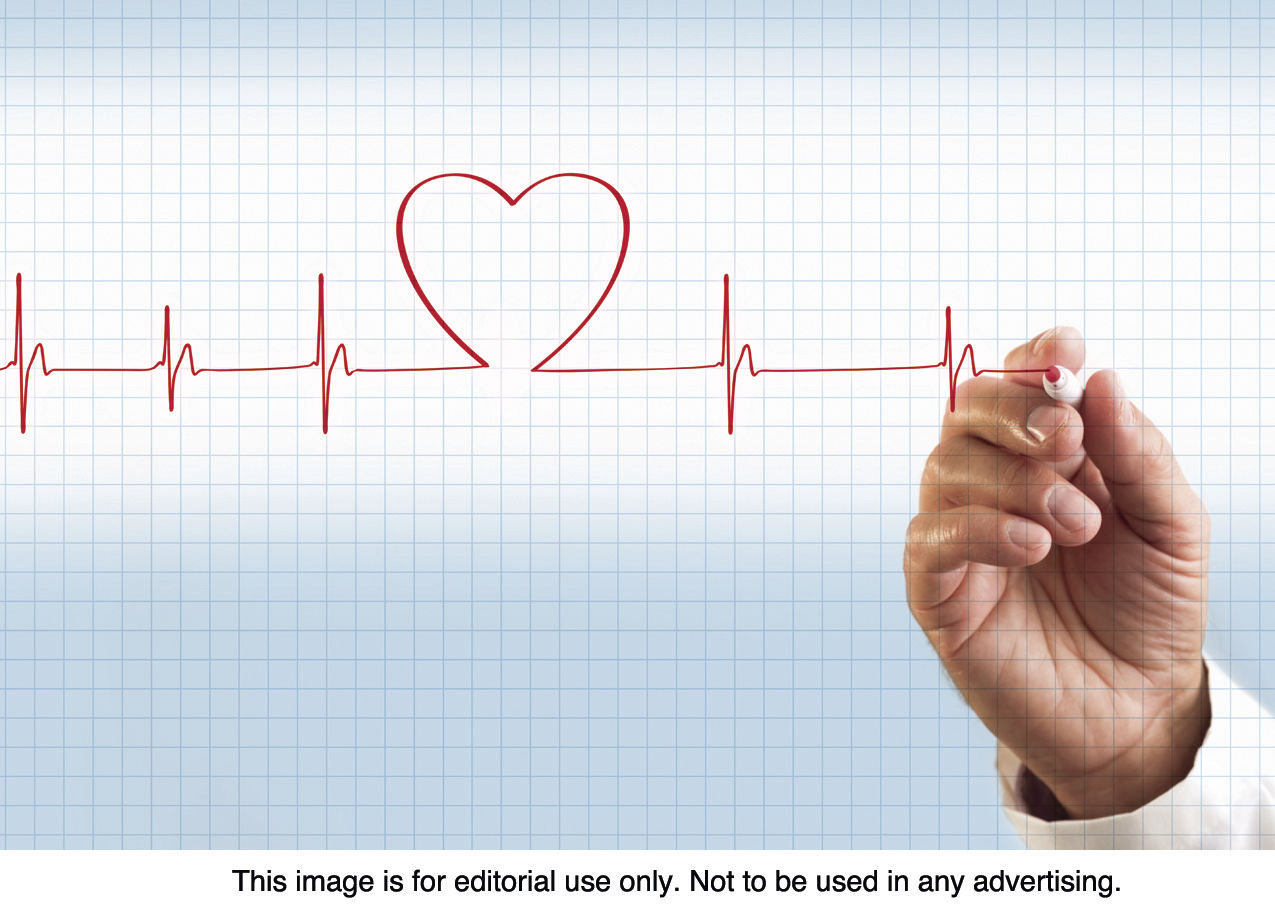 Atrial fibrillation - what it is, how to recognize and treat