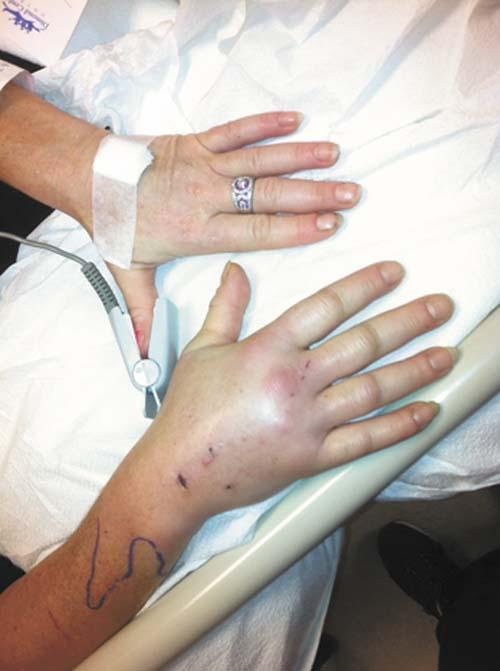 Cat Bite Nearly Costs Palmer Woman Her Arm Local News