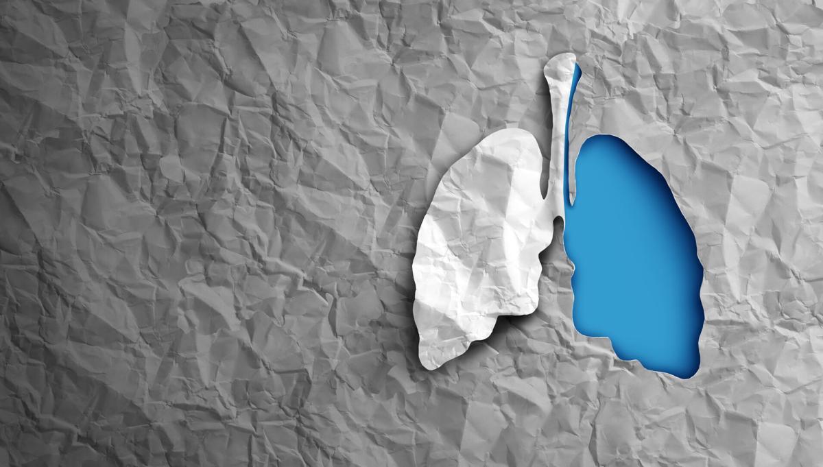 premium-health-lungs-20210203