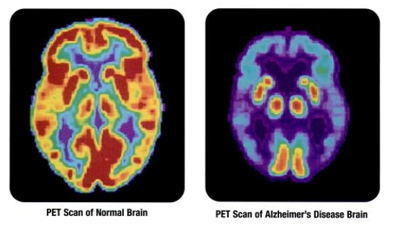 FIGURING IT OUT: Diagnosing Alzheimer's easier, treating it isn't