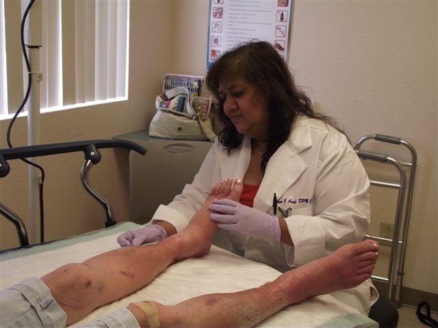 Amputation treatment