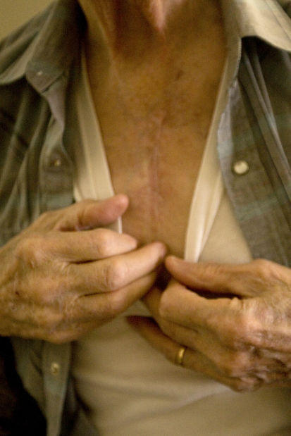 020214-dec-lif-heartsurgery2