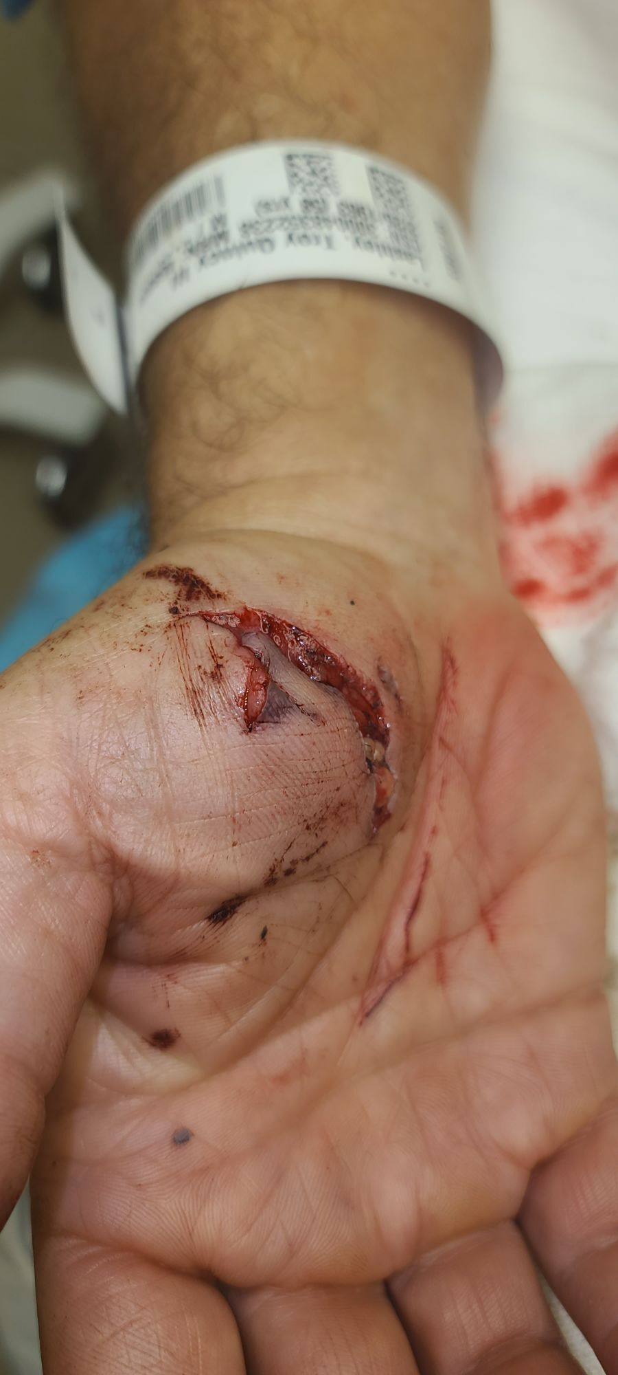 Troy's hand injury