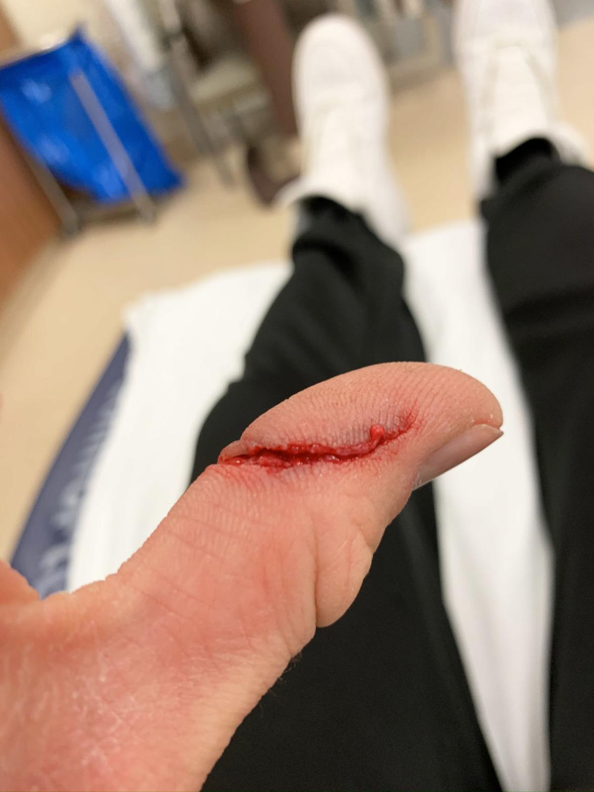 Luke cut thumb