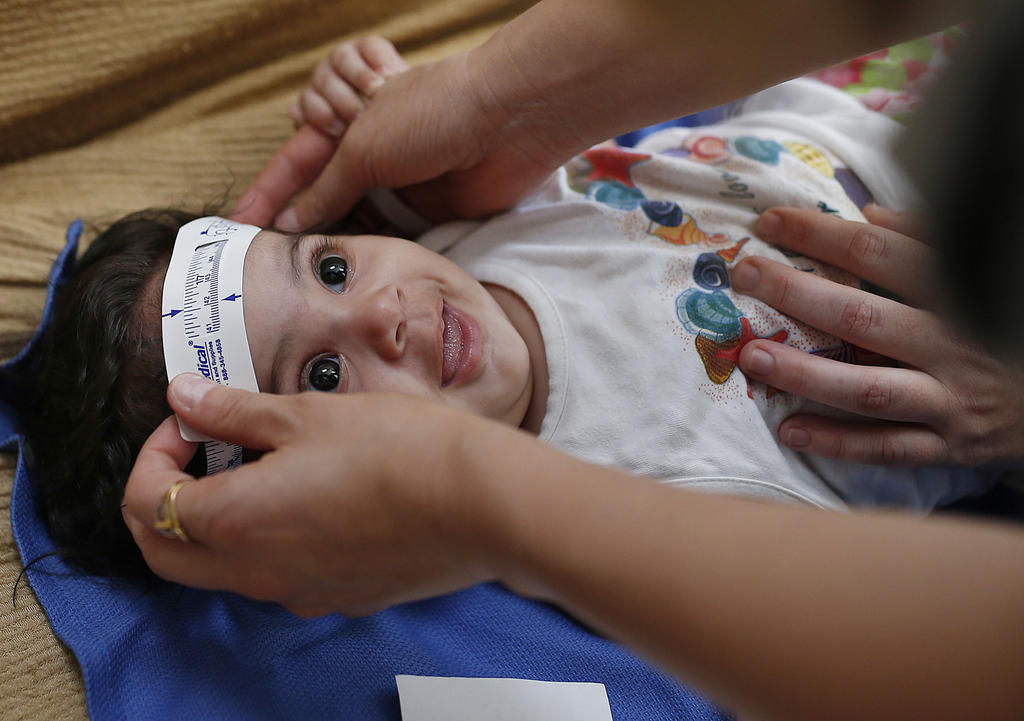 Researchers slowly honing in on risk of Zika birth defect