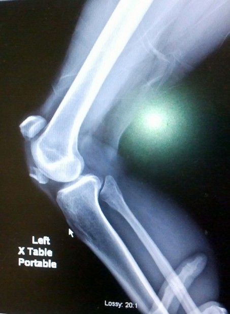 Bike crash X-ray