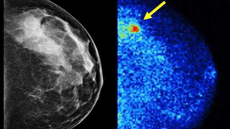 Mammogram vs. molecular breast imaging