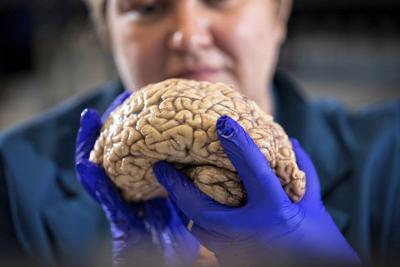Scientists rethink Alzheimer's, diversifying drug search