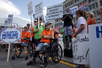 Amputees decry Medicare payment overhaul for artificial feet