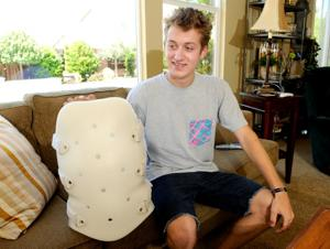 Lodi golfer expected to fully recover from broken back
