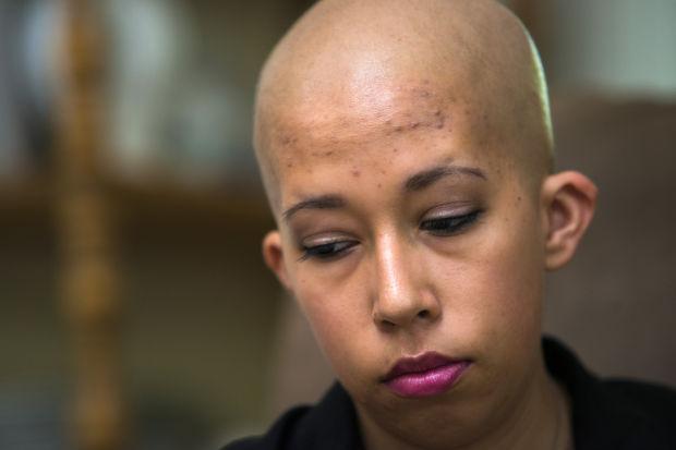 Galt's Kari Salinas pulls no punches in her fight against leukemia
