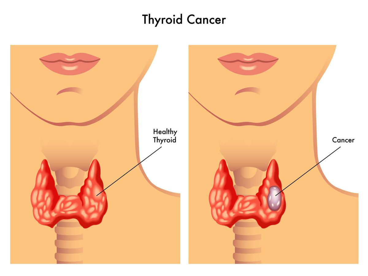 Increased Detection Of Low Risk Tumors Driving Up Thyroid Cancer