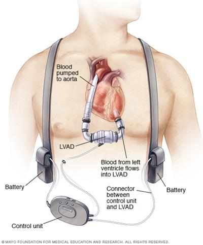 LIFE HEALTH-HEART-DEVICE MYO
