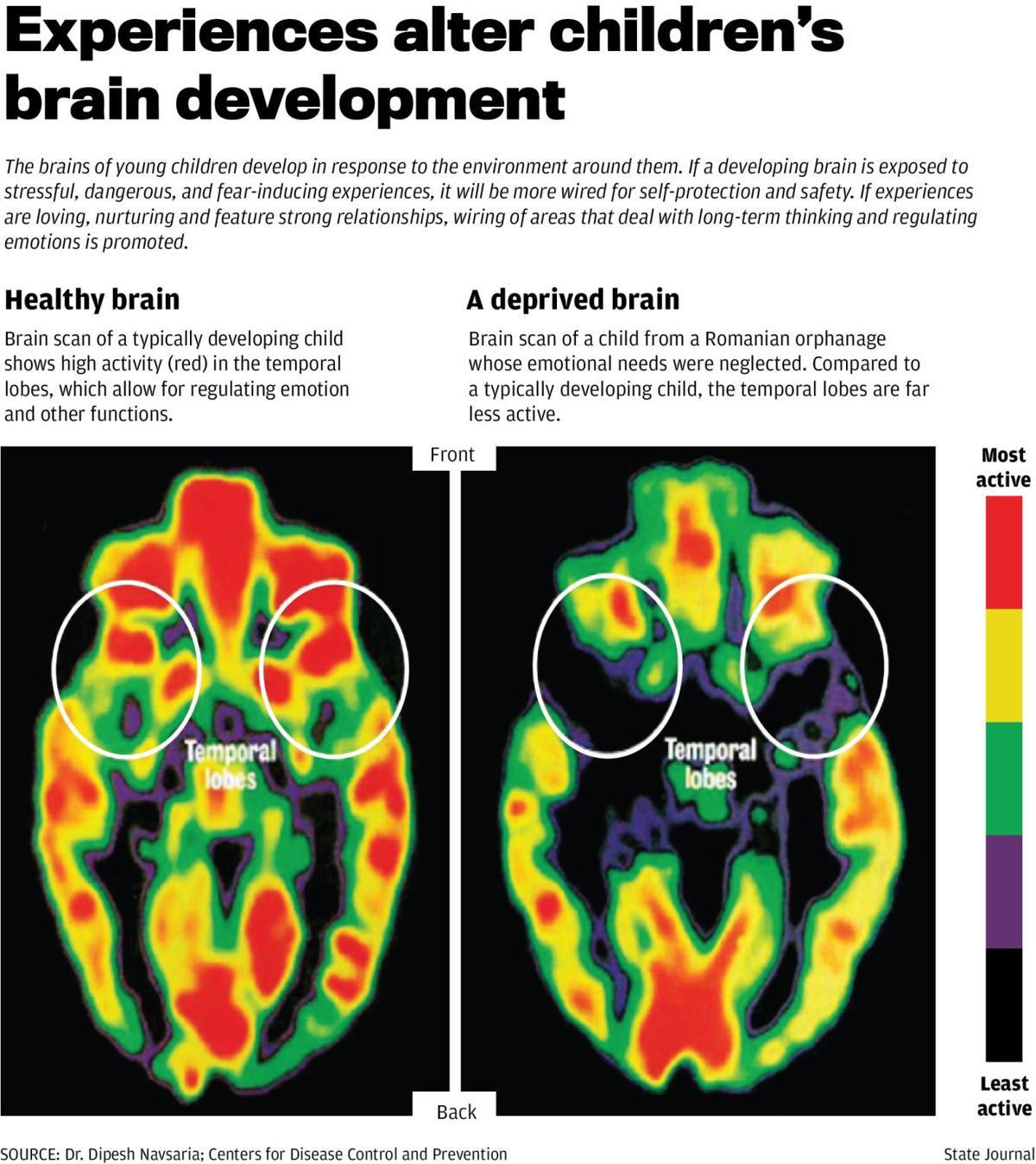 Experiences alter children's brain development