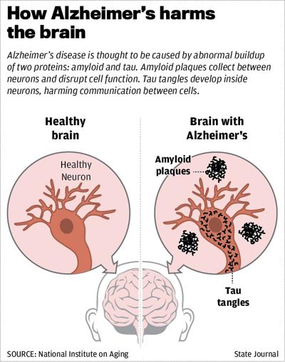 How Alzheimer's  harms the brain