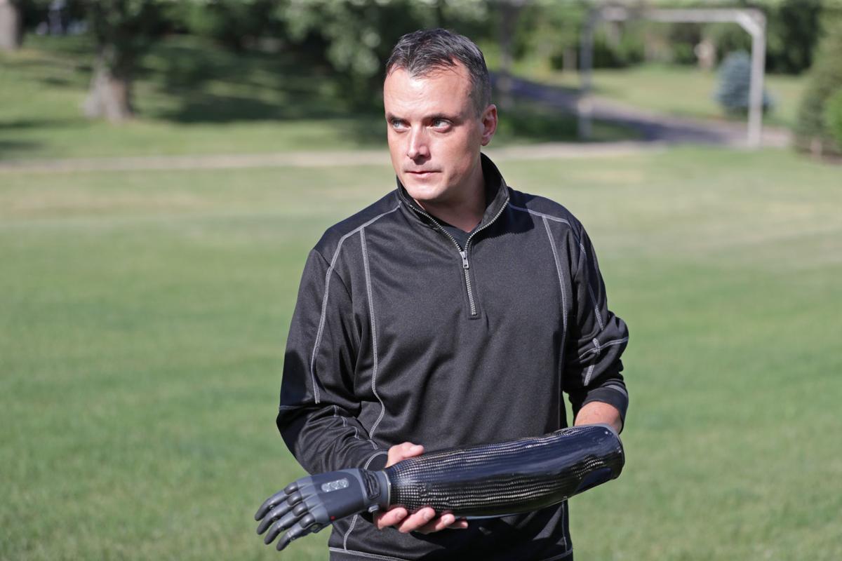 Ben showing prosthesis