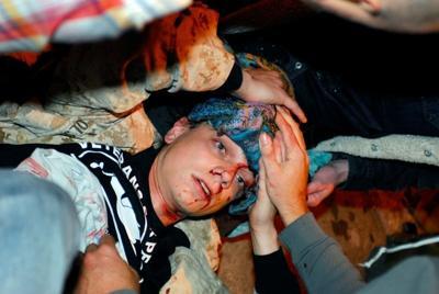 Scott Olsen injured at Occupy Oakland protest 10/25/11