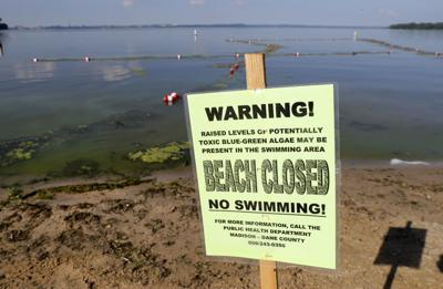 Beaches closed