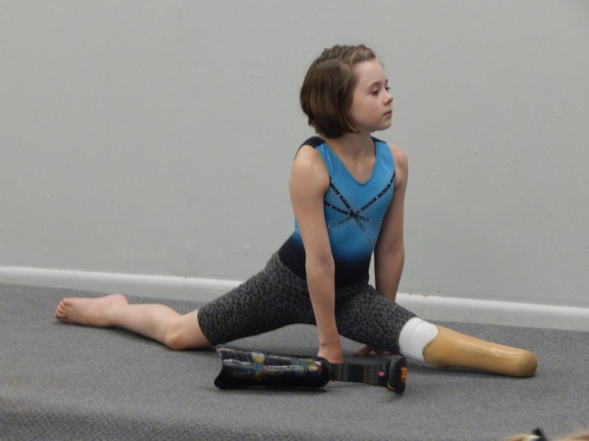 Zoe mostly wears her prosthetic, although she takes it off during gymnastics classes for some of the stretching exercises because it isn't as flexible as the human body.