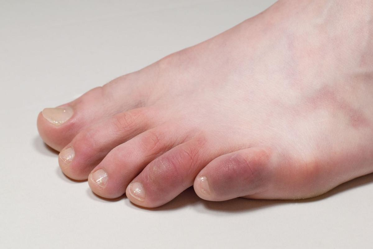 Dermatologist suggests foot rash might be symptom of COVID-19