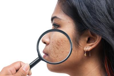 premium-health-acne-20210407