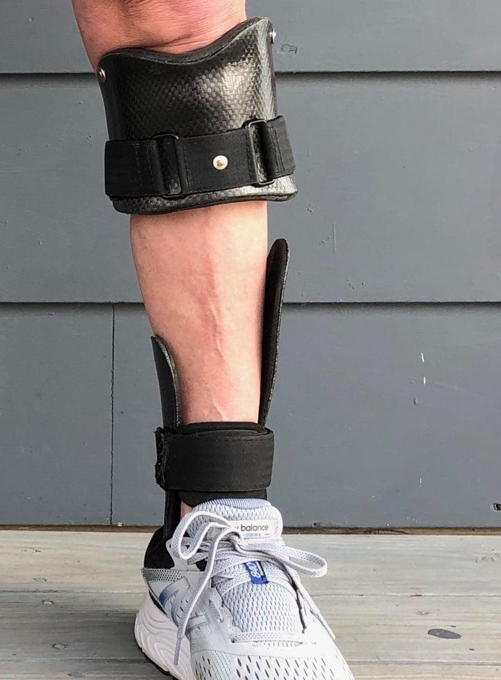 Wearing prosthetic
