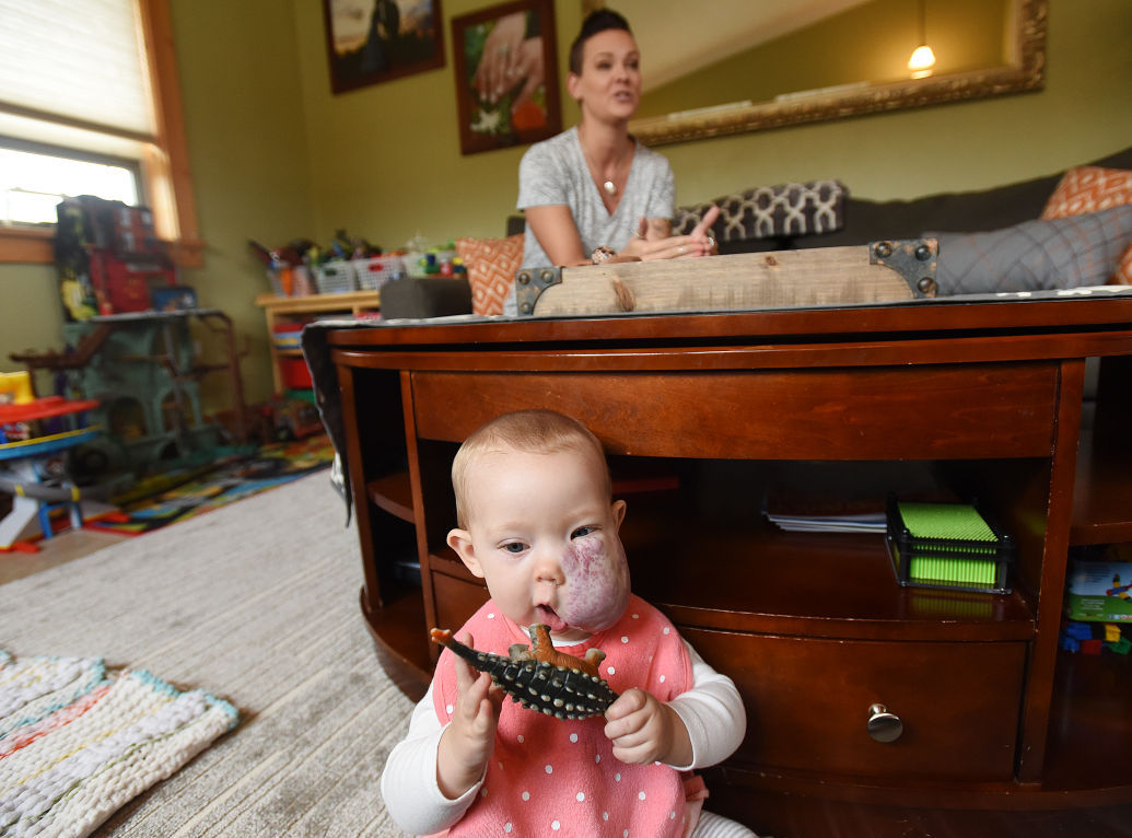 Missoula girl to have facial growth removed in January – Missoulian Birth Announcements