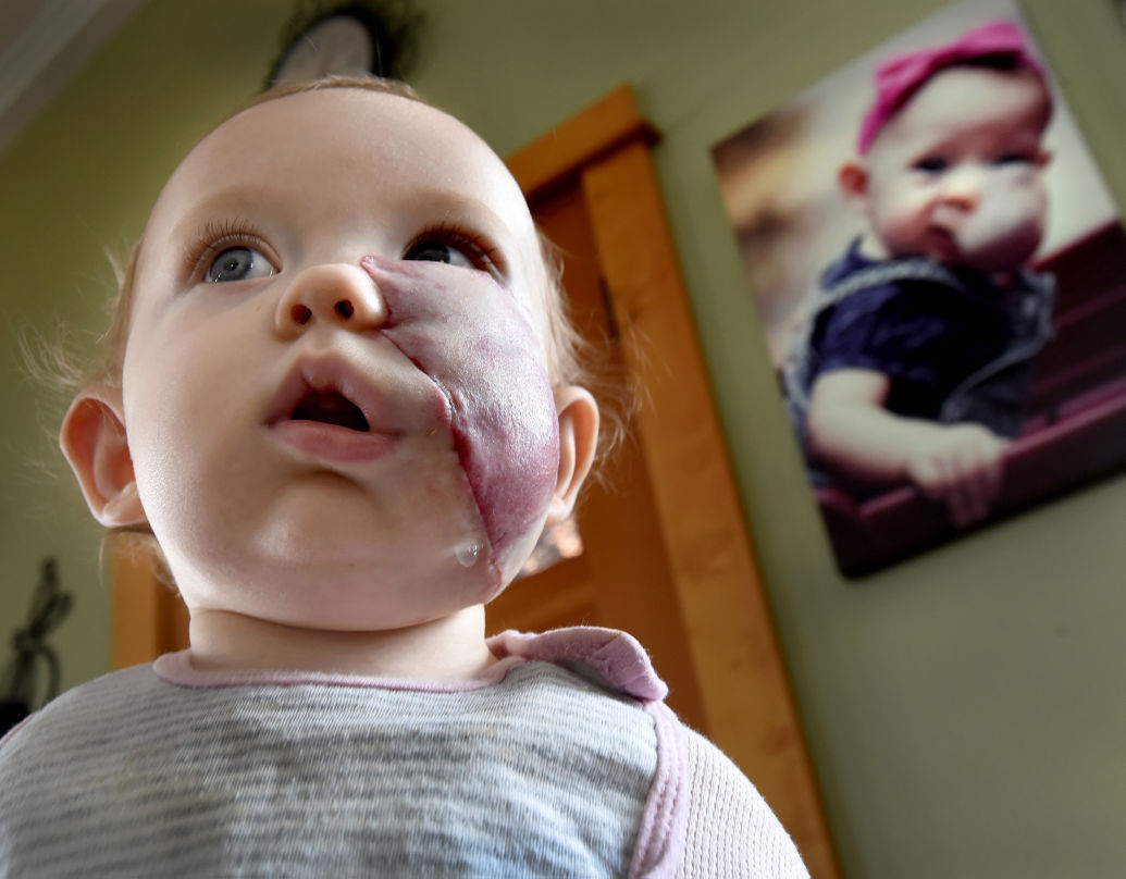 Missoula girl with rare tumor undergoes surgery in New York City – Missoulian Birth Announcements
