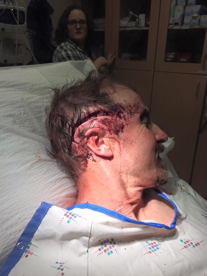 Todd Orr gash in head