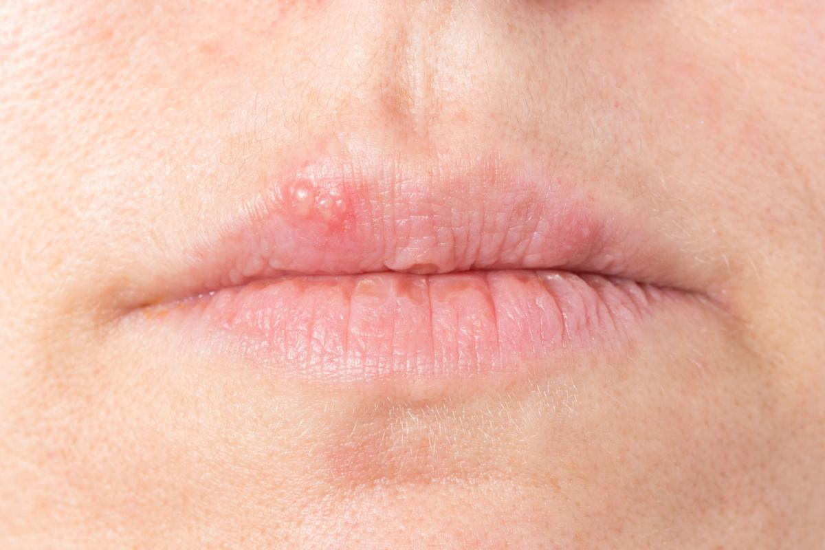 Home remedies: coping with cold sores | Lifestyles | mtstandard.com