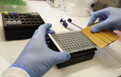 Brian Bowland, a senior clinical lab specialist at UCLA Health System, prepares a kit used in coronavirus detection.