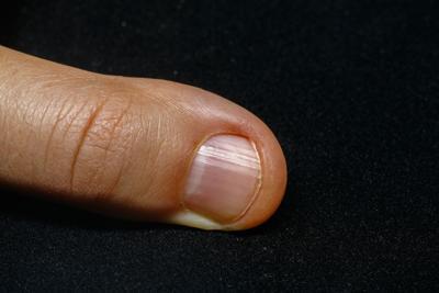 Severed thumb