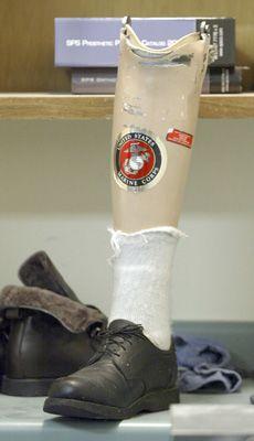 Area Marine vet gets leg up in life at Napa Valley Prosthetics and Orthotics